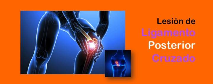 Lesion de Ligamento Cruzado Posterior LCP